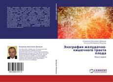 Bookcover of Эхография желудочно-кишечного тракта плода