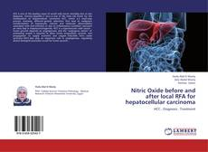 Portada del libro de Nitric Oxide before and after local RFA for hepatocellular carcinoma