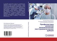 Bookcover of Профилактика развития патологических посттравматических рубцов