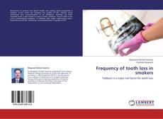 Copertina di Frequency of tooth loss in smokers
