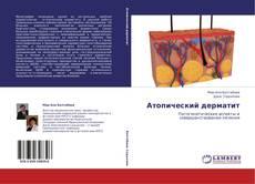 Buchcover von Атопический дерматит
