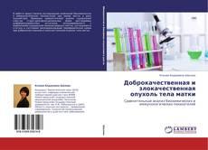 Portada del libro de Доброкачественная и злокачественная опухоль тела матки