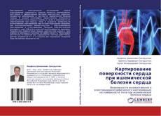 Bookcover of Картирование поверхности сердца   при ишемической болезни сердца