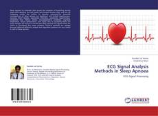 Borítókép a  ECG Signal Analysis Methods in Sleep Apnoea - hoz