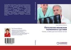 Патология менисков коленного сустава的封面