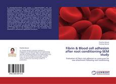 Bookcover of Fibrin & Blood cell adhesion after root conditioning-SEM study