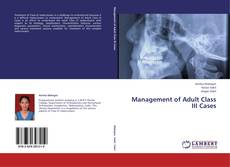 Bookcover of Management of Adult Class III Cases