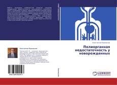 Bookcover of Полиорганная недостаточность у новорожденных