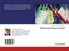 Bookcover of Mechanical Plaque Control