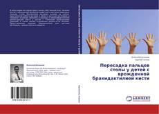 Buchcover von Пересадка пальцев стопы у детей с врожденной брахидактилией кисти