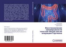 Bookcover of Восстановление непрерывности толстой кишки после операции Гартмана