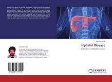 Buchcover von Hydatid Disease