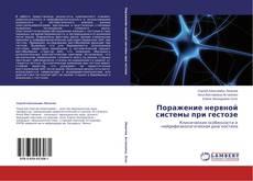 Bookcover of Поражение нервной системы при гестозе