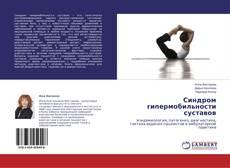 Bookcover of Синдром гипермобильности суставов