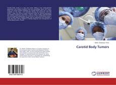 Bookcover of Carotid Body Tumors