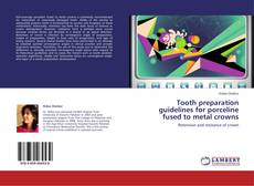 Bookcover of Tooth preparation guidelines for porceline fused to metal crowns