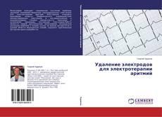 Portada del libro de Удаление электродов для электротерапии аритмий