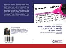 Bookcover of Breast Cancer is the leading cause of cancer deaths among women