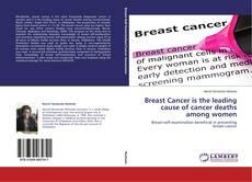 Borítókép a  Breast Cancer is the leading cause of cancer deaths among women - hoz