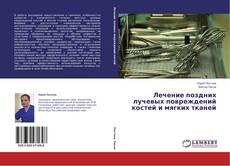 Bookcover of Лечение поздних лучевых повреждений костей и мягких тканей