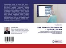 Bookcover of Рак легких в сочетании с туберкулезом
