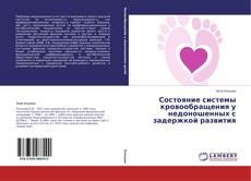 Bookcover of Состояние системы кровообращения у недоношенных с задержкой развития