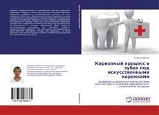 Couverture de Кариозный процесс в зубах под искусственными коронками