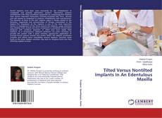 Bookcover of Tilted Versus Nontilted Implants In An Edentulous Maxilla