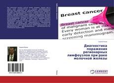 Bookcover of Диагностика поражения регионарных лимфоузлов при раке молочной железы