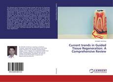 Bookcover of Current trends in Guided Tissue Regeneration: A Comprehensive Review
