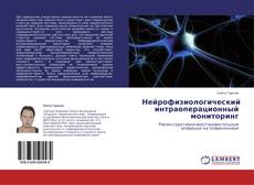 Bookcover of Нейрофизиологический интраоперационный мониторинг