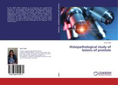 Bookcover of Histopathological study of lesions of prostate