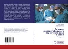 Лечение нерезектабельного первичного рака печени kitap kapağı