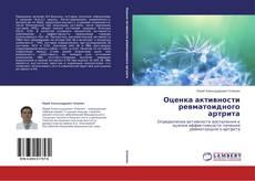 Bookcover of Оценка активности ревматоидного артрита