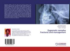 Bookcover of Zygomatic complex fractures and management