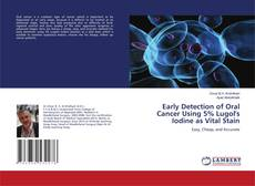 Bookcover of Early Detection of Oral Cancer Using 5% Lugol's Iodine as Vital Stain