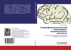 Обложка Нейрофизиологический мониторинг ишемического инсульта