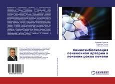 Bookcover of Химиоэмболизация печеночной артерии в лечении раков печени