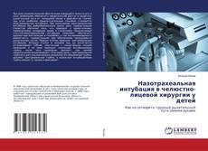 Bookcover of Назотрахеальная интубация в челюстно-лицевой хирургии у детей