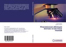 Bookcover of Плазменная абляция мягких и костных тканей