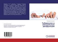 Bookcover of Туберкулез и сексуальные дисфункции
