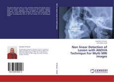 Borítókép a  Non linear Detection of Lesion with ANOVA Technique For Multi MRI images - hoz