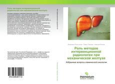 Couverture de Роль методов интервенционной радиологии при механической желтухе