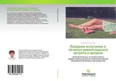 Bookcover of Лазерное излучение в лечении ревматоидного артрита и артроза