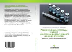 Радионуклидные методы оценки рентгеноэндоваскулярного лечения опухолей kitap kapağı