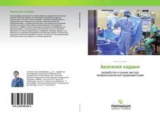 Bookcover of Ахалазия кардии