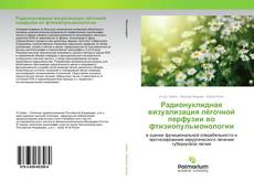 Bookcover of Радионуклидная визуализация лёгочной перфузии во фтизиопульмонологии