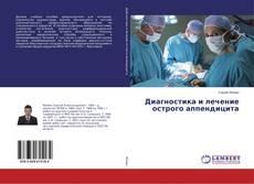 Portada del libro de Диагностика и лечение острого аппендицита