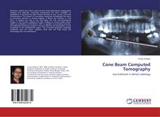 Bookcover of Cone Beam Computed Tomography