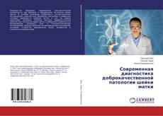 Bookcover of Современная диагностика доброкачественной патологии шейки матки